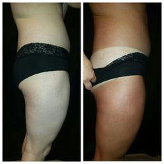 Spray Tan Before and After by Aviva Labs solutions, applied by Glow N Go Spray Tanning