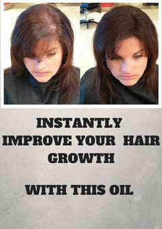 Improve Your Hair Growth With Peppermint Oil - Healthalike Hair Loss Essential Oils, Essential Oils Guide, Natural Oil, Natural Healing, Hair Cure, Hair Follicles, Beauty Regime, Peppermint Oil, Healthy Hair Growth