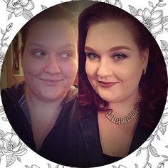 Before & After | Zo blij dat het eindelijk beter gaat met mijn huid. Maar make-up blijft toch wel handig . Binnenkort een update op mijn blog over welke middelen ik gebruik tegen acne.