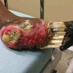 This is a gangrenous foot with a maggot infestation so bad that it is exposing the underlying foot metatarsal bones. The craziest part: This person is still alive ...@webmedic81