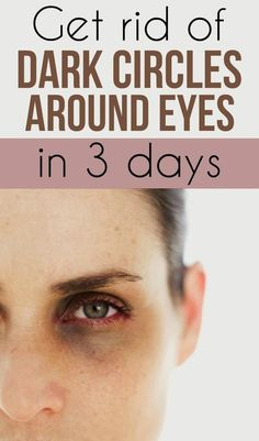Get rid of dark circles around eyes in 3 days - My Beauty Tips For You