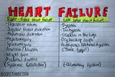 right sided heart failure - Google Search