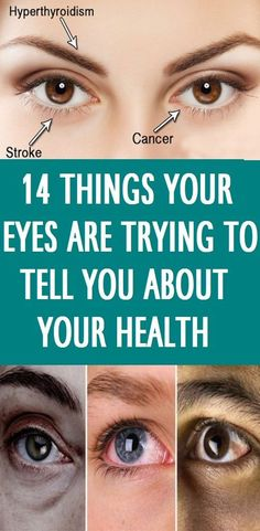 14 Things Your Eyes are Trying to Tell You About Your Health – Health Awareness Media Arthritis, Health And Beauty, Health And Wellness, Health Care, Simply Health, Health Fitness, Fitness Hacks, Wellness Tips, Mental Health