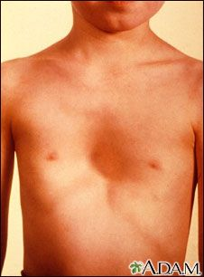 1c76842bcf64f Pectus excavatum is a condition in which the breast bone (sternum) appears  sunken and the chest concave.