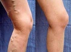 Táto prirodzená metóda vám umožní efektívne odstrániť kŕčové žily, už svoje nohy nebudete viac schovávať pod nohavicami | MegaZdravie.sk