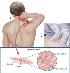 Painful and Tender Muscles: Dry Needling Can Reduce Myofascial Pain Related to Trigger Points Muscles | Journal of Orthopaedic & Sports Physical Therapy