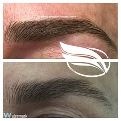 Fill in sparse areas of the eyebrow with Cosmetic tattoo in the Hairstroke technique.
