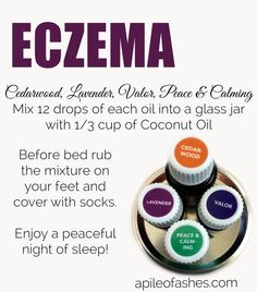 Eczema Young Living essential oils. To get started with essential oils or to learn more, go to http://bit.ly/CCappsYL or email me at cariebill@gmail.com, Carina Capps Independent Distributor # 1544827