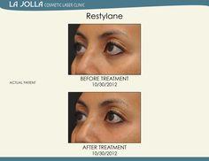 Patient treated with Restylane at La Jolla Cosmetic Laser Clinic. Under Eye Creases, Under Eye Primer, Healthy Oils, Healthy Skin, Under Eye Fillers, Laser Clinics, Exfoliating Scrub, Dermal Fillers, Eye Serum