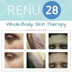 RENU 28 targets all your problem areas - get yours here www.lesleyfalconer.teamasea.com