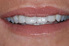 Smile makeover using porcelain veneers and lower arch tooth whitening Porcelain Veneers, Smile Makeover, Best Dentist, Cosmetic Dentistry, Teeth Whitening, Tooth, Dental, Arch, San Francisco