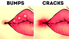 Our lips have more than a million nerve endings and are much more sensitive than our fingertips. They need special care. Sometimes they can signal to us that. Medical Problems, Your Lips, Medical Conditions, To Tell, Told You So, Make It Yourself, Health, Health Care, Salud