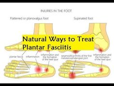 Natural Ways to Treat Plantar Fasciitis - How To Cure Heel Pain