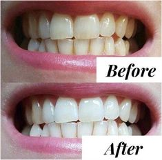 Fluoride Toothpaste lightens teeth without peroxide while preventing cavities and plaque formation. Whitening Fluoride Toothpaste, Teeth Whitening Remedies, Best Teeth Whitening, Best Toothpaste White Teeth, Lip Plumping Balm, Teeth Care, Dental Care, Teeth Braces, Bleach