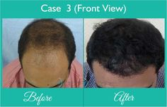 Hair Transplant Surgery done at Dezire Clinic Pune. Visit our website to know details of Hair Transplant Surgery Cosmetic Surgery in India, Cost of Hair Transplant Surgery For Men. Call on 9222122122 for free consultation.