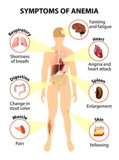 Symptoms Of Anemia  http://www.draxe.com #health #holistic #natural