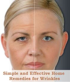 Simple and Effective Home Remedies for Wrinkles