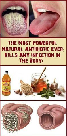 The Most Powerful Natural Antibiotic Ever – 3 cups apple cider vinegar 1/4 cup garlic, finely chopped 1/4 cup onion, finely chopped 2 fresh peppers, extra hot and chilly 1/4 cup ginger, grated 2 tbsp. horseradish, grated 2 tbsp. turmeric 3 tbsp. honey