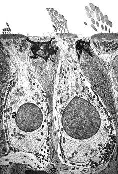 Vestibular hair cells