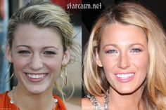 Before and After: Cosmetic surgery - Likes
