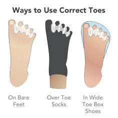 Description Features Sizing Resources Correct Toes toe spacers, made of medical-grade silicone, may help restore proper toe alignment, prevent overpronation, and correct bunionettes, bunions, crooked toes, hallux limitus, hammertoes, ingrown toenails, neuromas, plantar fasciosis, runner's knee, sesamoiditis, and shin splints. Correct Toes toe spacers are durable, comfortable, and economical, especially when compared to the most common alternatives, orthotics or surgery, which cost hundreds…