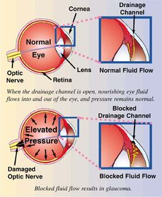 Image result for label the eye diagram nurses station pinterest glaucoma glaucoma normally affects both the eyes but added fluid stress ccuart Images