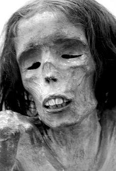 Kentucky Mummy (National Museum of Health and Medicine)
