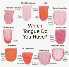 Which Tongue do you have