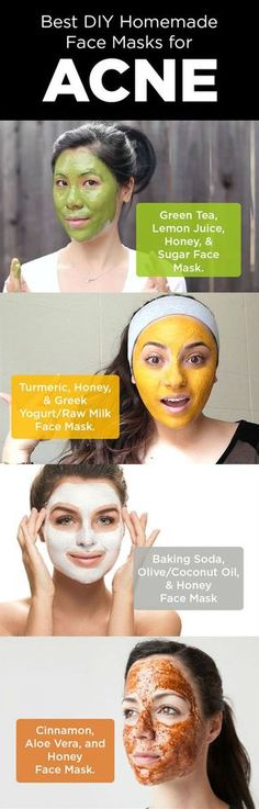 Face Masks for Acne Natural DIY Homemade Face Masks to Cleanse your Skin Here are some best ways of applying face masks to cleanse your skin and thereby to clear acne and its scars. #FaceMasks #ACNE #Scars #DIYRemedies