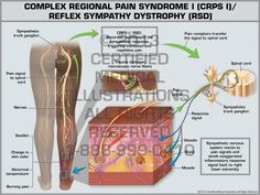 Complex Regional Pain Syndrome | Complex Regional Pain Syndrome I (CRPS I)/ Reflex Sympathy Dystrophy ...