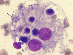 histoplasmosis (frotis medular)