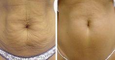 Voici comment raffermir votre peau naturellement !