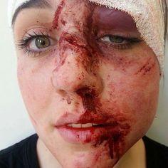 Bruising, swollen eye, cuts,, bloody, Special effects makeup by Jacquelinepriem