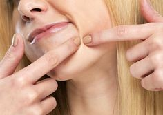 Esteticista ensina como eliminar sozinha os indesejados pontinhos pretos do rosto