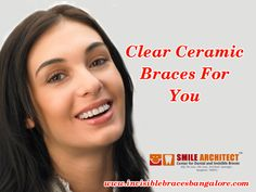 Ceramic Braces, Invisible Braces, Your Smile, Teeth, Dental, Ceramics, Popular, Ceramica, Pottery