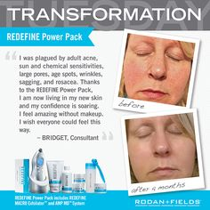 It's easy! Just add our Redefine regimen to your daily skincare routine!