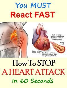 Here's How To Stop A Heart Attack In 60 Seconds, You Must React Fast