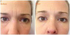 We recommend Oz Naturals Eye Gel!