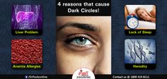 4 reasons that cause Dark Circles! - Heredity - Anemia allergies  - Liver problem - Lack of sleep  If you are affected with dark circles, consult our skin expert who will explain you in detail about your conditions. Visit http://www.drpaulsonline.com/