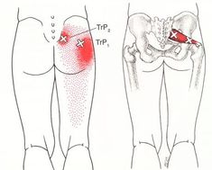 Piriformis syndrome can cause buttock pain, pelvic pain, hip pain, even sciatica or sciatic pain. It can be related to spinal stenosis All about Piriformis Syn Sciatica Pain, Sciatic Nerve, Nerve Pain, Muscle Piriforme, Psoas Muscle, Hip Pain, Low Back Pain, Syndrome Pyramidal, Piriformis Syndrome Symptoms