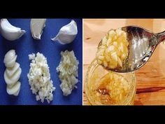 How to prepare garlic to benefit health, along with some recipes Arthritis, Heart Attack Symptoms, Organic Recipes, Ethnic Recipes, Coconut Health Benefits, Honey Benefits, Garlic Benefits, Stomach Ulcers, Healthy Oils