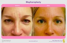 Blepharoplasty (Eyelid Lift) Before and After. Cosmetic eyelid surgery (blepharoplasty) is a procedure to remove fat, excess skin and muscle from the upper and lower eyelids.