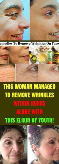 Your skin loves egg whites. They contain a protein that works as a moisturizer and skin softener. The vitamin A in it hides wrinkles in a natural way and makes your skin smoother. Face Wrinkles, Prevent Wrinkles, Beauty Tips For Face, Beauty Hacks, Beauty Secrets, Face Tips, Beauty Care, Diy Beauty, Homemade Beauty