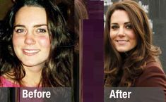 Nose Kate Middleton - hit plastic surgery in Britain Meghan Markle Nose Job, Duchess Kate, Duchess Of Cambridge, Queen Kate, Queen Rania, Kim Kardashian, Celebs Without Makeup, Princess Kate Middleton, Princesa Kate