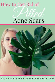 How to get rid of pitted acne scars. How to get rid of boxcar scars. What causes acne scars? Acne scar treatment. #skincare #skincaretips #acnescars #acnescartreatment #acnetreatment Best Acne Treatment, Scar Treatment, Bad Acne, Acne Marks, Acne Solutions, Natural Exfoliant, How To Get Rid Of Acne, Acne Prone Skin