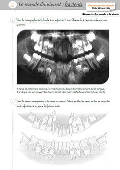 dossier complet sur les dents
