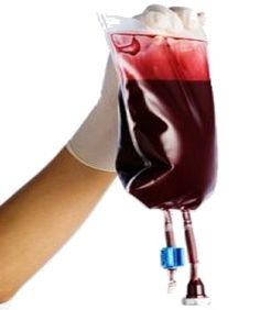 blood bag Blood Donation, Dialysis, Blood Test, Red Wine, Alcoholic Drinks, Medical, Bag, Medicine, Liquor Drinks