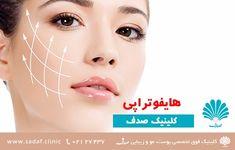 « کلینیک تخصصی پوست، مو و زیبایی صدف - هایفوتراپی »  روش درمانی هایفوتراپی می تواند یک روش ایمن و موثر برای  درمان افتادگی پوست و دیگر مشکلات پوست باشد. هایفوتراپی یک روش درمانی جدید غیر جراحی و غیر تهاجمی مشابه اولتراتراپی است که در آن از امواج مافوق متمرکز و فرآیند بهبود طبیعی خود صورت برای لیفت صورت، بهبود وضعیت پوست و سفت کردن افتادگی آن در ناحیه ابرو، گردن، زیر چانه، و حتی بالای ناحیه سینه بیمار استفاده می شود.