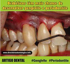 gengivite-periodontite title=