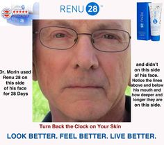 To show the power of Renu 28, this Doctor used it on just half on his face for the 28 days Look at the results.